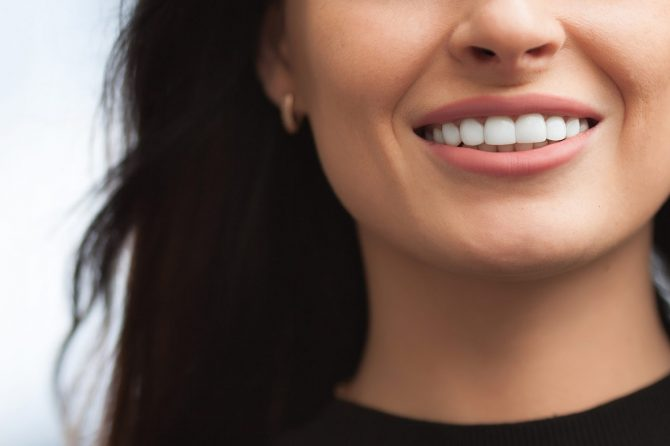 bigstock-206792386-670x446 Teeth Whitening dentist Hartland
